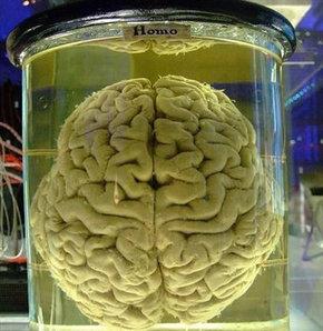 insan-beynini-calip-satan-polis-yakalandi-52ca11f6051ff